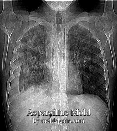 aspergillomas
